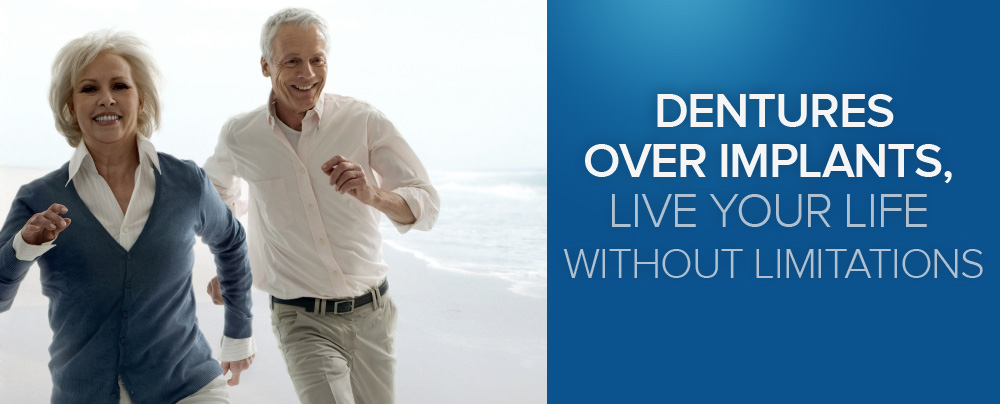 Dentures over implants, live your life without limitations